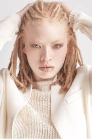 Albino Models Are Coming Up!